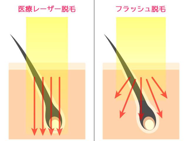 医療レーザー脱毛とフラッシュ脱毛の光線の比較
