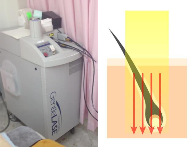 医療レーザー脱毛の脱毛器と照射イメージ