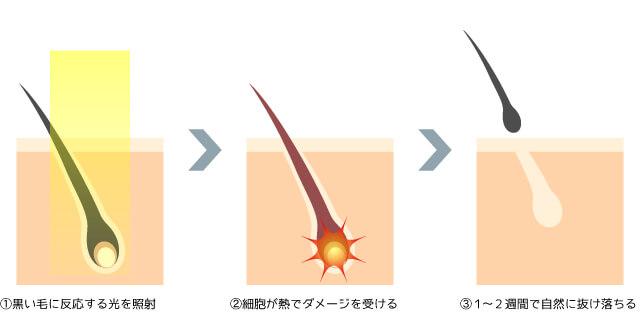 光脱毛・医療レーザー脱毛の仕組み