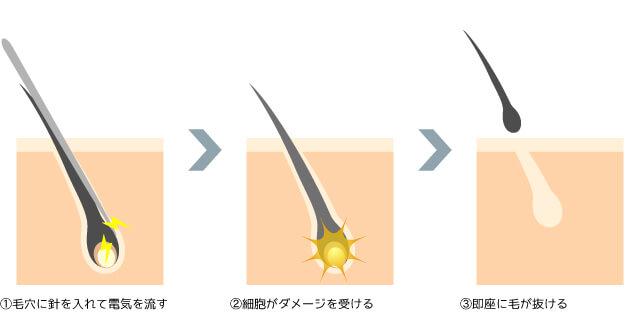 針脱毛・医療絶縁針脱毛の仕組み