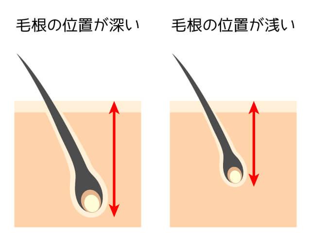 ヒゲと他のムダ毛の毛根の位置の比較