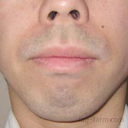 髭剃り後の「青ひげ」