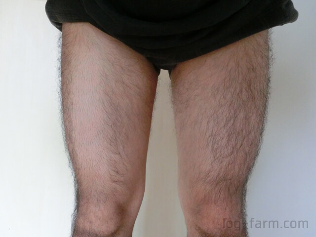 除毛した脚としていない脚を比較