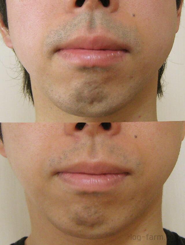 a4の鼻下のヒゲ脱毛結果(ビフォーアフター)