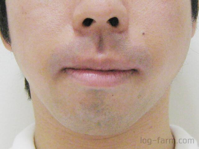 ゴリラクリニックのヒゲ脱毛直後の鼻下