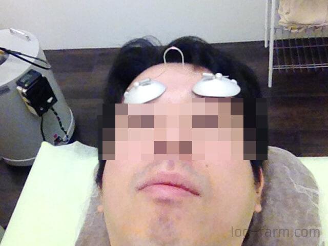 ヒゲ脱毛前のアイマスク装着
