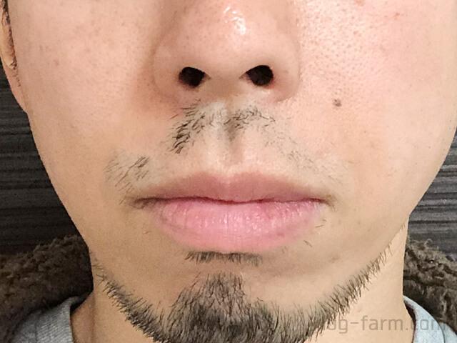ヒゲ脱毛5回目から4週間後(1ヶ月後)