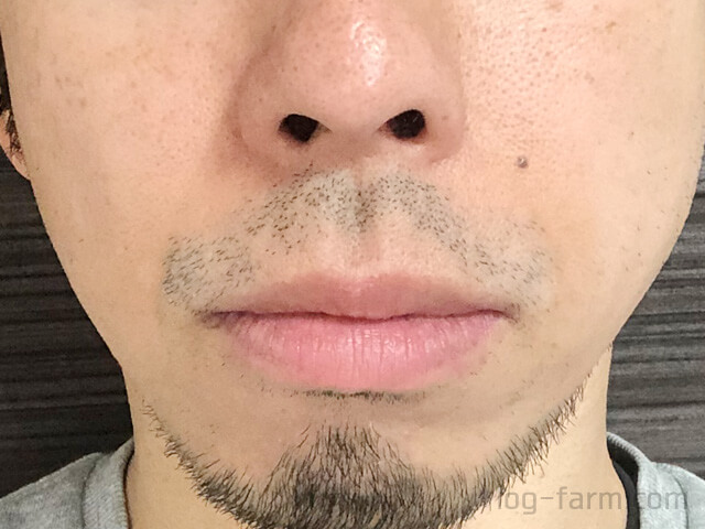 ヒゲ脱毛5回目から8週間後(2ヶ月後)