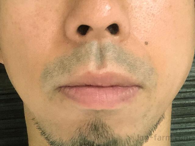 レーザー照射前の鼻下のヒゲ