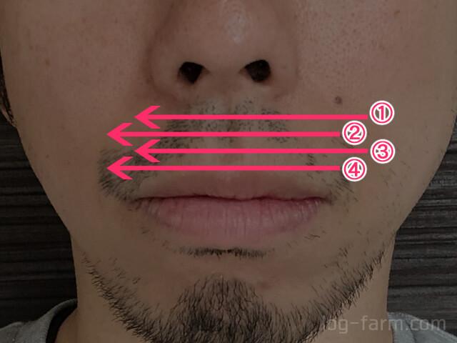 湘南美容クリニックのレーザー照射は4回