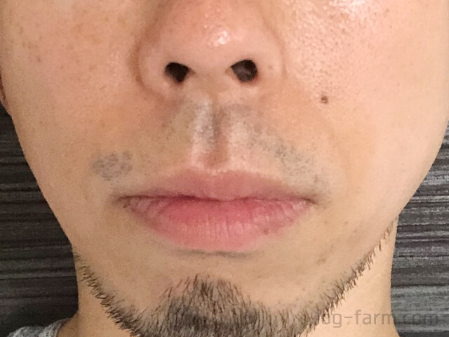 2回目のヒゲ脱毛後の鼻下