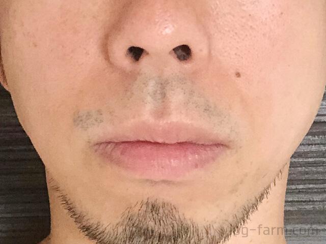 2回目のヒゲ脱毛前の鼻下