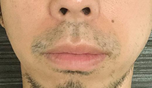 【ヒゲ復活!元に戻る髭たち】ヒゲ脱毛2回目@湘南から6週間後の経過報告