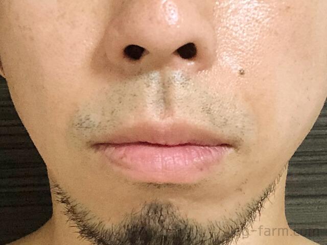 ヒゲ脱毛2回目から4週間後(1ヶ月後)
