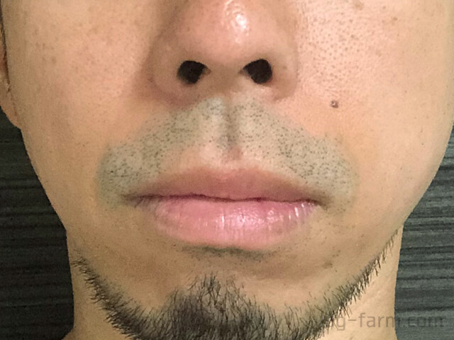 ヒゲ脱毛2回目から6週間後(1ヶ月半後)