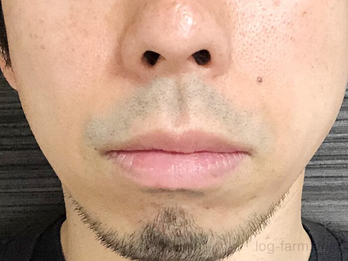 7回目のヒゲ脱毛前の髭