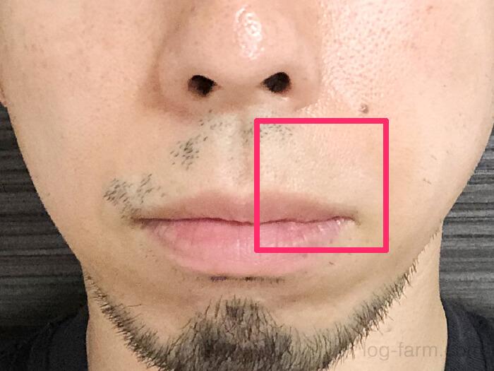 【ヒゲ脱毛7回目から約2ヶ月の経過報告】鼻下のヒゲが一部生えなくなった