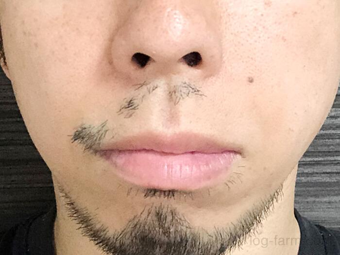 ヒゲ脱毛7回目から4週間後(1ヶ月後)