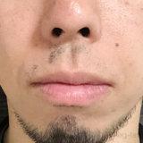 ヒゲ脱毛6回目から2ヶ月半の効果報告