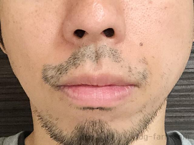 ヒゲ脱毛3回目から4週間後(1ヶ月後)