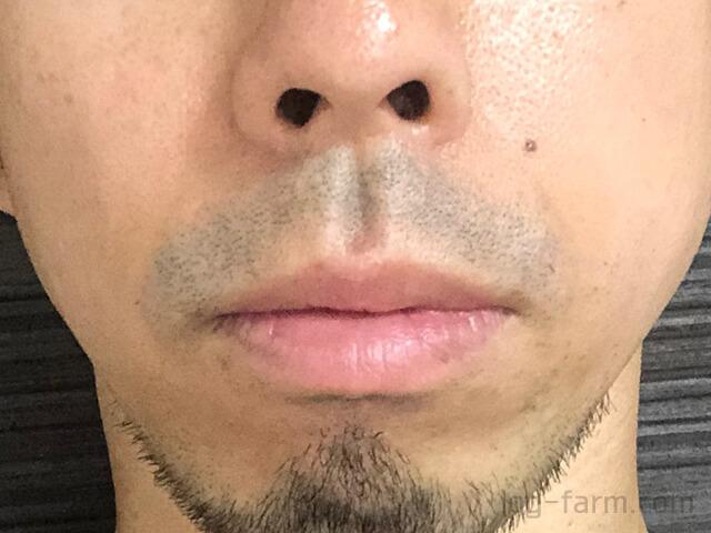 メディオスター照射直後の鼻下のヒゲ