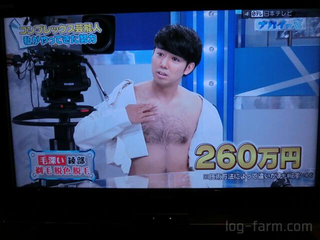 綾部の胸毛を永久脱毛するのに260万円